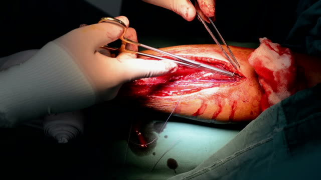 surgeon suture close subcutaneous layer - forearm stock videos and b-roll footage