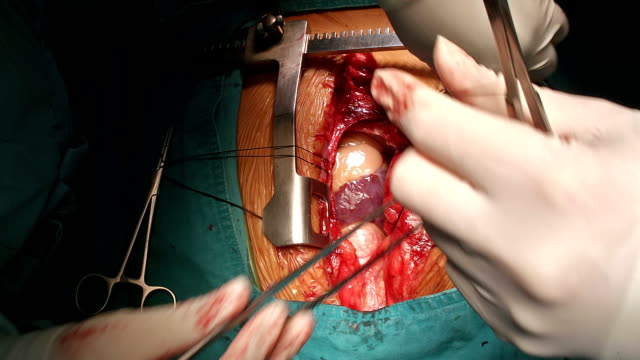 surgeon suture hanging pericardium - formal glove stock videos and b-roll footage