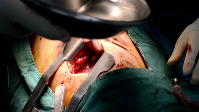 stockvideo's en b-roll-footage met surgeon test air leakage after lung surgery - thoracic cavity