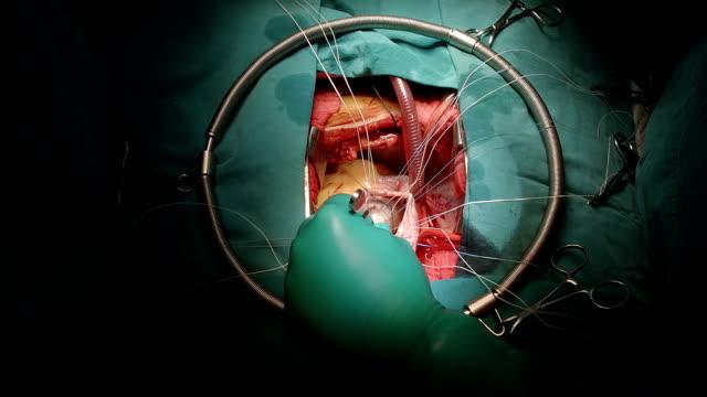 chirurg mit normalen salzwasser-test mitralklappe - vorkammer stock-videos und b-roll-filmmaterial
