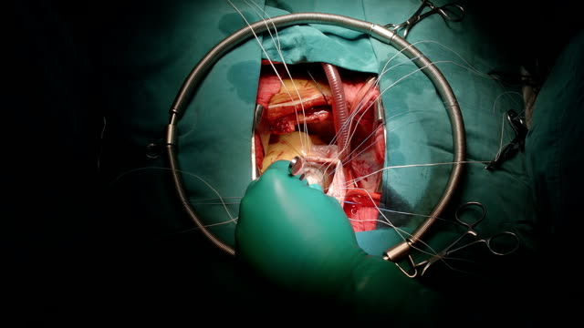 surgeon use normal saline test mitral valve - atrioventricular valve stock videos & royalty-free footage