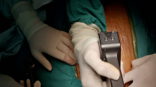 surgeon use saw to open sternum - hand saw stock videos and b-roll footage