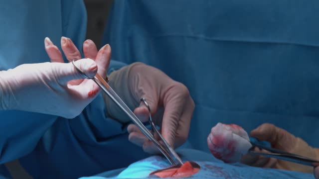 td surgeon using surgical scissors during operation - operating stock videos & royalty-free footage