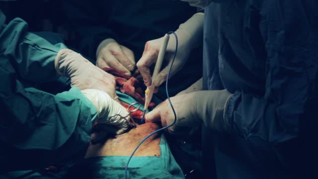 stockvideo's en b-roll-footage met chirurgen u open renal bekken bewerking uitvoert - mensennier