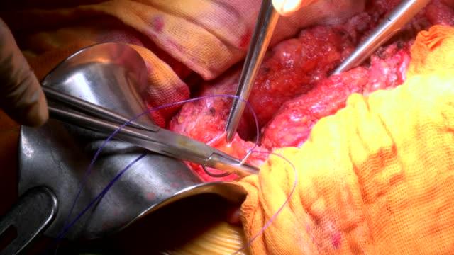 外科医は、病院の手術室で患者の腹部ヘルニアの手術を行う - 人の腸点の映像素材/bロール