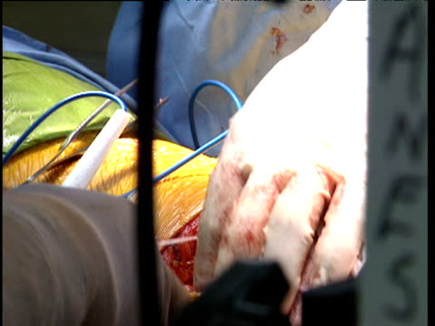 Surgeons performing lung operation