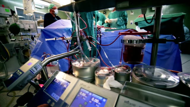 surgery. cardiopulmonary bypass machine - artery stock videos & royalty-free footage