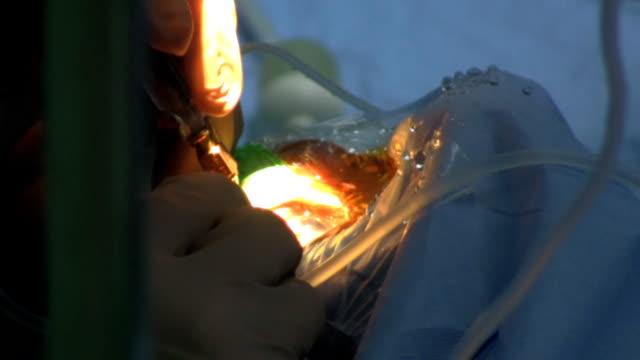 surgery eye - cornea stock videos and b-roll footage
