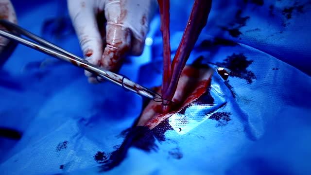 stockvideo's en b-roll-footage met surgery operation - menselijke darmen