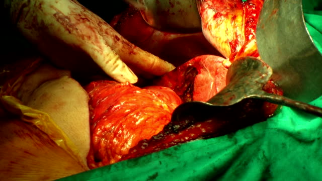 surgery operation - human pancreas stock videos & royalty-free footage