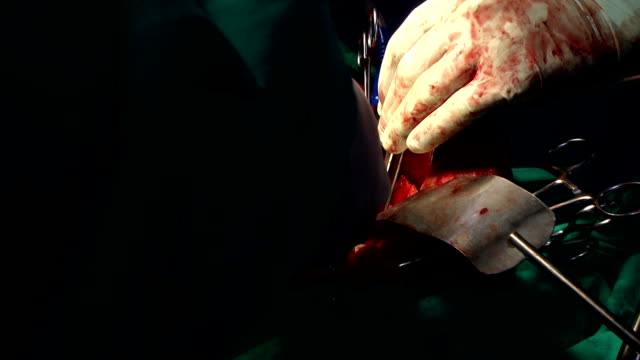 surgery operation - human liver stock videos & royalty-free footage