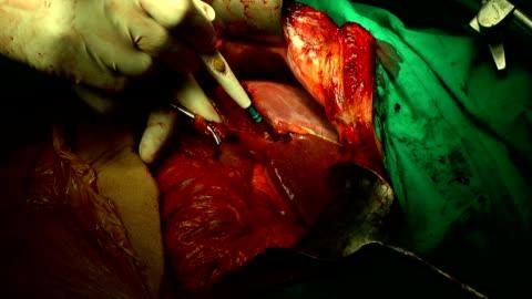 stockvideo's en b-roll-footage met operatie operatie - mensenlever