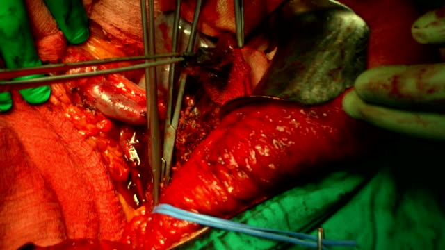 surgery operation - liver stock videos and b-roll footage