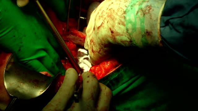 surgery operation - pancreas stock videos & royalty-free footage
