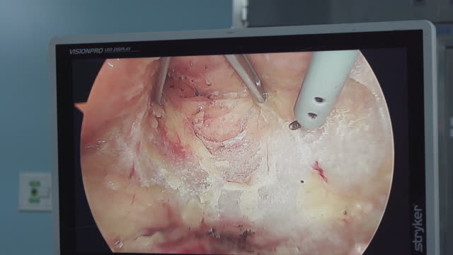 surgical display during colorectal cancer surgery - human large intestine stock videos & royalty-free footage