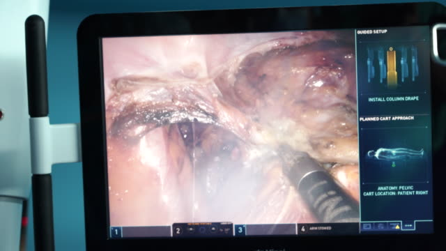 surgical display during uterine fibroids surgery - endoscope stock videos & royalty-free footage