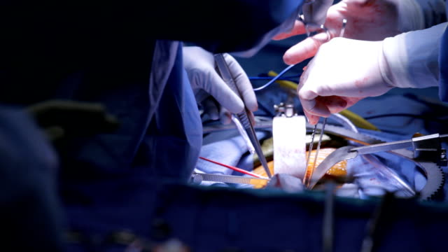 surgical procedure - operating stock videos & royalty-free footage