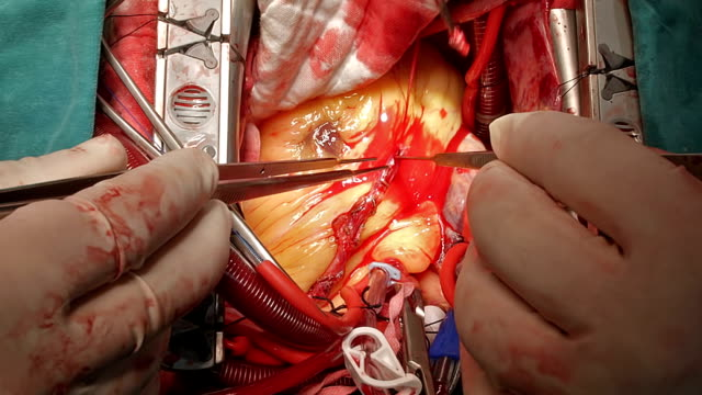 Suture suture Left internal mammary artery