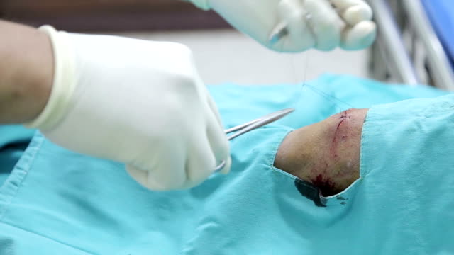 suture. - surgical scissors stock videos & royalty-free footage