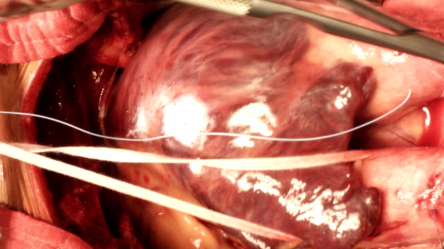 suturing superior vena cava - artery stock videos & royalty-free footage
