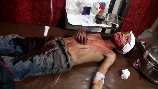 syrian civilians who have been injured in the recent attacks of assad regime and its allies on zamalka neighborhood, receive treatment at a hospital... - 空爆点の映像素材/bロール