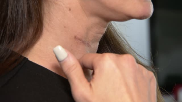 'tag time' leads to violent attacker only serving six months in jail england int various shots of abigail blake showing reporter scar on her neck and... - ärr bildbanksvideor och videomaterial från bakom kulisserna