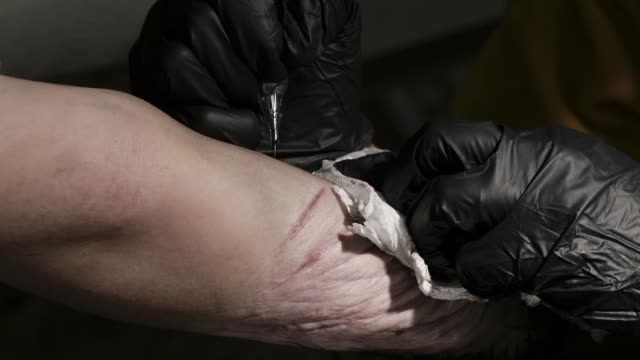 tattoo artist hadas nikomarov tattooing over scars of a young woman's forearm in different pulses tattoo studio in tel aviv israel women come to... - forearm stock videos and b-roll footage