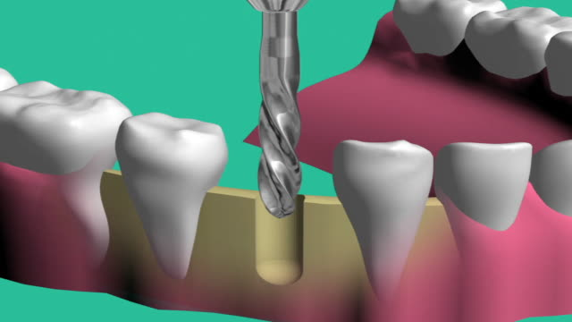 technology installation of dental implants - tooth cap stock videos and b-roll footage