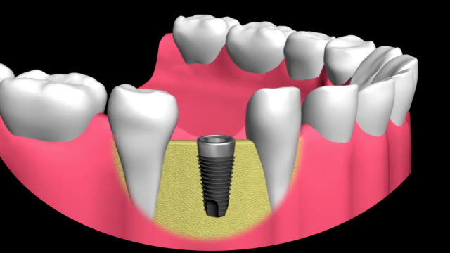 technology of dental implants - human teeth stock videos & royalty-free footage