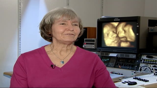 technology reveals 'vanishing twin syndrome'; england: london: int 2-shot althea hayton sat wih saville althea hayton interview sot - it stands to... - improvement stock videos & royalty-free footage