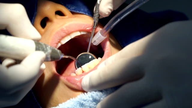 teeth dental cleaning service at clinic with dentist - dentures stock videos and b-roll footage