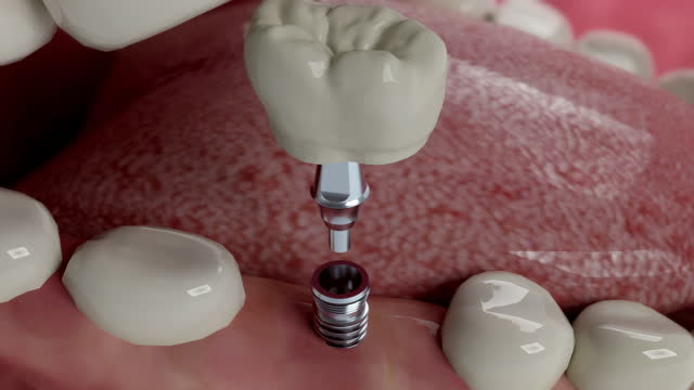 teeth implant installing - 4k resolution - human mouth stock videos & royalty-free footage