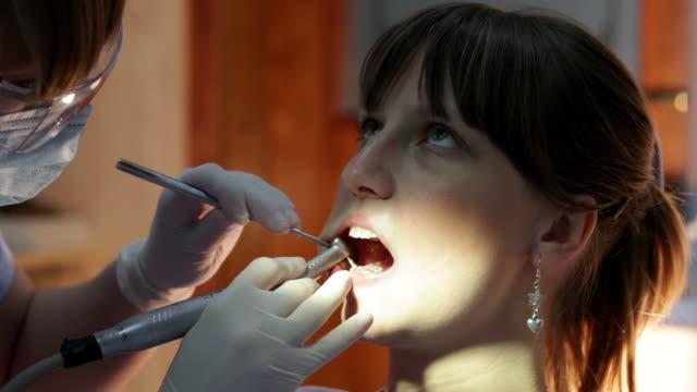 teeth polishing - plaque bacteria stock videos & royalty-free footage