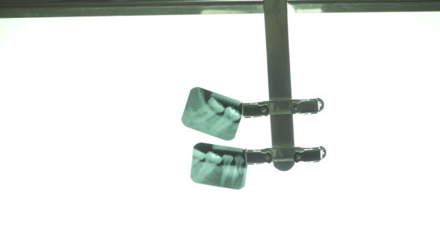 teeth's x-ray with light table - lightbox stock videos & royalty-free footage