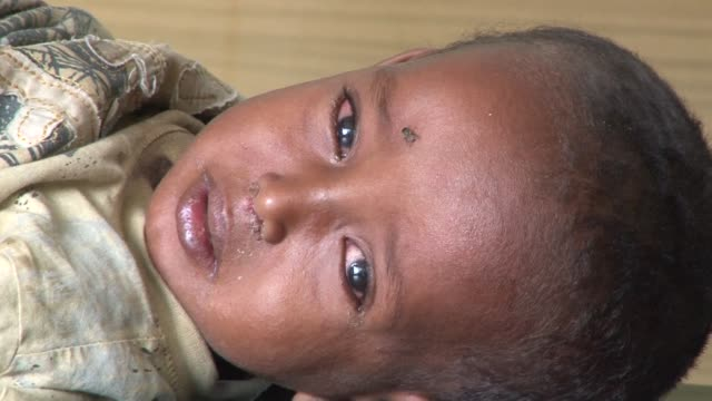 Tens of thousands of Somalis have been hit by drought and famine and many are now severely malnourished Mogadishu Somalia