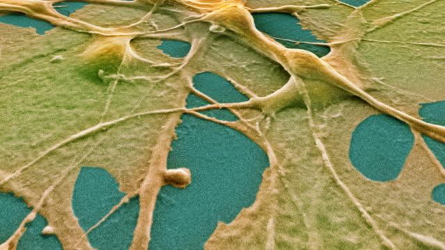 """teratoma cancer cells, sem"" - 転移性腫瘍点の映像素材/bロール"