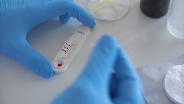 test covid-19 - medical test stock videos & royalty-free footage