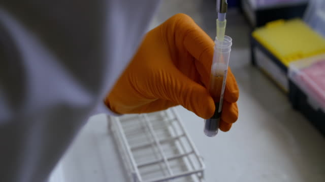 vídeos de stock, filmes e b-roll de a test is carried out on blood in a laboratory to measure changes in cholesterol levels. - ciência e tecnologia