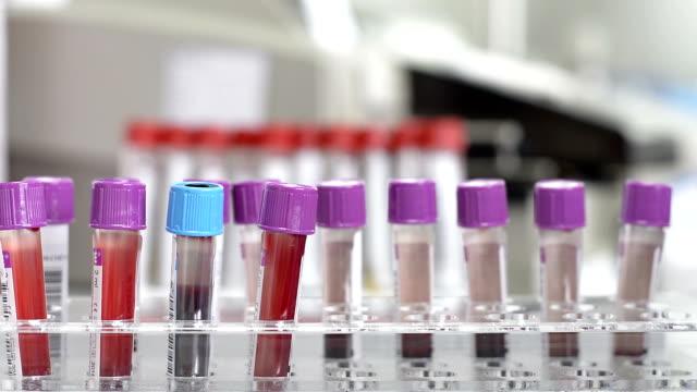 test tube in laboratory