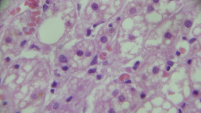 the adrenal glands slide under microscopy - repetition stock videos and b-roll footage