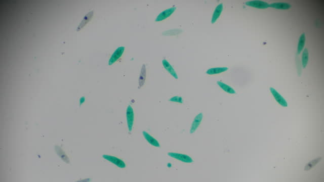 the euglena under light microscopy - organismo unicellulare video stock e b–roll
