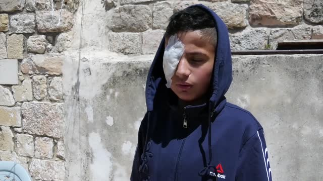 the life of the 13-year-old palestinian boy, izz al-din al-batsh has changed and his dreams have been unfinished since he lost his eye in an israeli... - hebron west bank stock videos & royalty-free footage