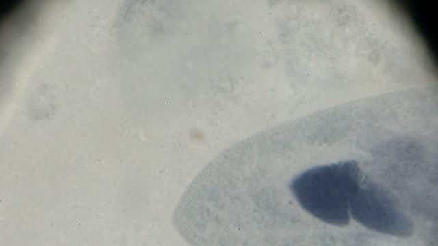 the paramecium under light microscopy - paramecium stock videos and b-roll footage