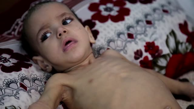 the united nations children's fund and un world food programme release a press statement about latest humanitarian crisis in sanaa, yemen on april... - yemen bildbanksvideor och videomaterial från bakom kulisserna