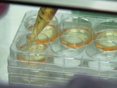 The US federal government says it will allow the worldÕs first test in people of a therapy derived from human embryonic stem cells The trial for...