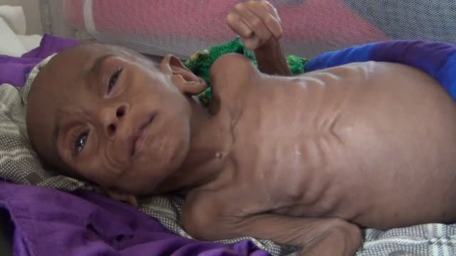 The video footage shows people at camps in Mogadishu Somalia on March 22 2017 Somalia faces one of the worst famine because of draught in the recent...