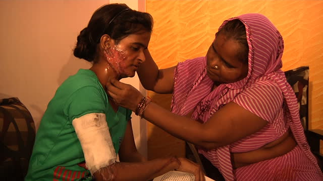 this clip contains a gap of black third party content removedvoiced victims of acid attacks in india are calling on the government to do more to stop... - violenza video stock e b–roll