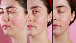 Three halves of the face of a young Caucasian woman close-up showing the result before and after rosacea treatment. Split screen. Pink background. The concept of couperose and rosacea