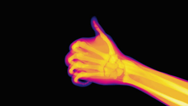 thumbs up, coloured x-ray - human bone stock videos & royalty-free footage