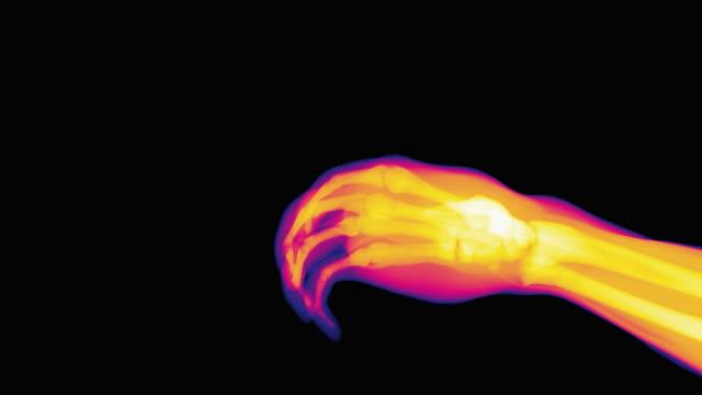 thumbs-up, coloured x-ray - 科学写真技術点の映像素材/bロール